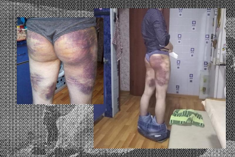 Фото Владимира после избиения