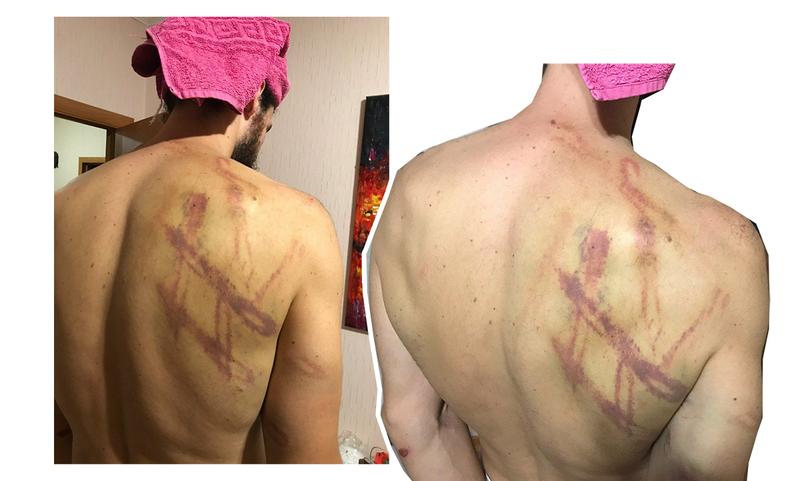 Уже почти сошедшие синяки. Фото сделано на четвертые сутки после избиения.